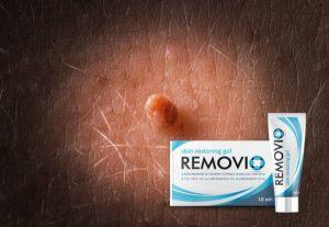 Removio Gel Bewertung – Bio-Formel für glühende Haut ohne Papillomas und Warzen!