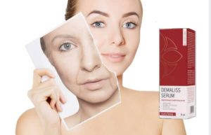 Demaliss Serum für Gesichtsunvollkommenheiten registriert mehr und mehr positive Bewertungen über seine Ergebnisse, Zutaten und Preis