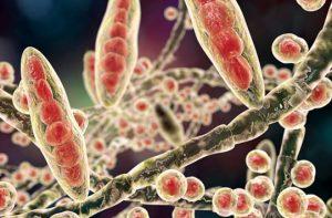 10 Lebensmittel, die die Entwicklung einer Pilzinfektion stoppen